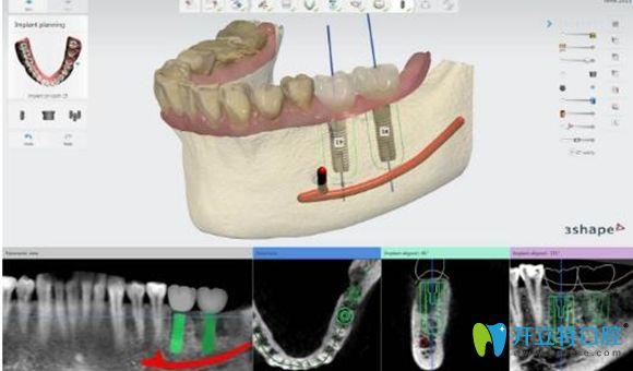 3d导板数字化种植牙过程图解