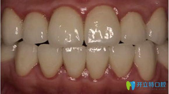 水晶瓷牙真人修复效果图