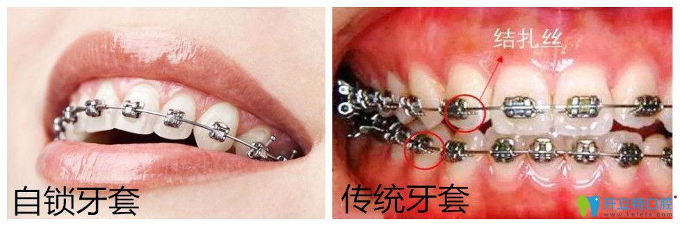 自锁托槽牙齿矫正多少钱?正畸国产与进口自锁有区别吗?