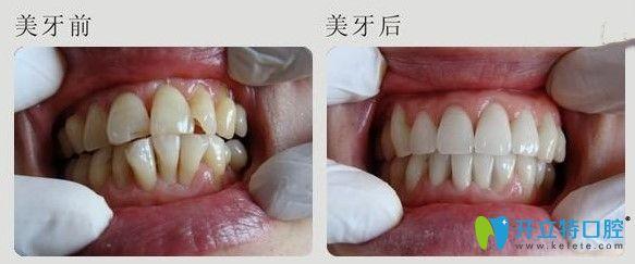 上海德伦口腔牙齿拥挤不齐矫正案例