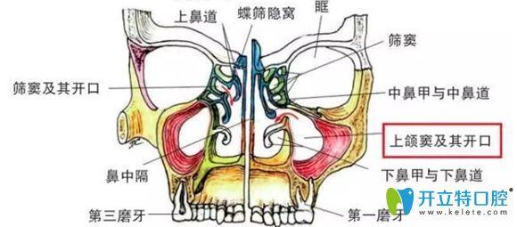 弄清了上颌窦内外提升术,你就知道种牙时上颌窦提升危险不