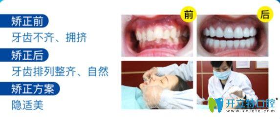 广州曙光口腔牙齿不齐矫正案例