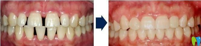 牙齿稀疏自锁托槽矫正效果
