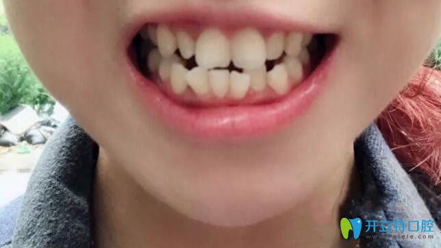 贵阳牙齿矫正哪家好?我在美和谐矫正拥挤不齐牙齿案例公布