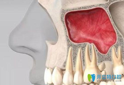 种植牙时做上颌窦提升有没有危险