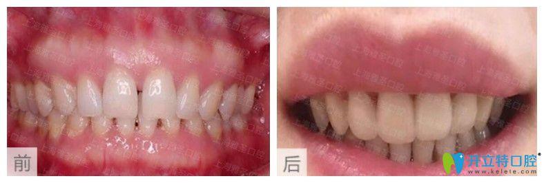 上海德伦口腔前牙牙缝过大矫正案例