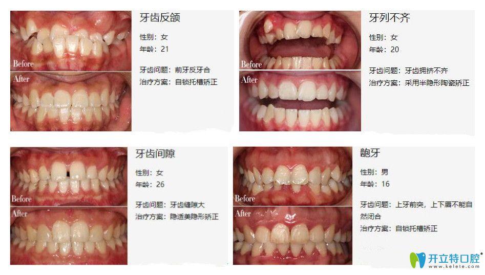 弘和口腔的真人牙齿矫正案例