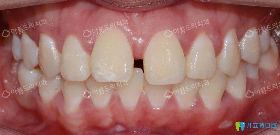 韩国牙科水平怎么样?安特丽牙科种植矫正案例及评价供参考