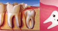 科普:埋伏牙与阻生牙的区别以及全埋伏牙没症状要不要拔