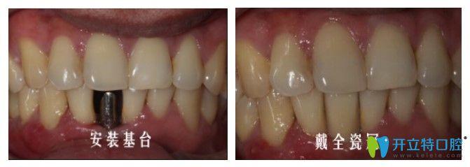 牙管家口腔当日用种植牙图示