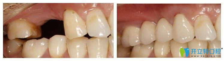 牙管家口腔单颗牙种植案例图