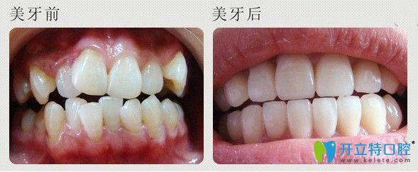 优诺博士牙齿拥挤不齐矫正案例图示
