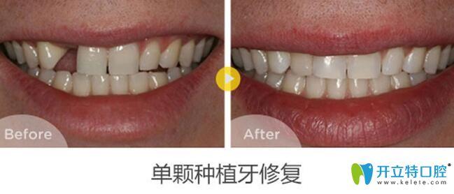 南昌辉煌口腔单颗种植牙案例