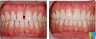 诺德口腔牙缝过大矫正案例图