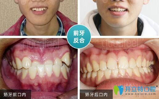深圳格伦菲尔口腔牙齿矫正怎么样?正畸案例评价及价格公布