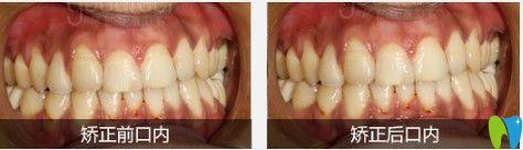 格伦菲尔牙齿拥挤矫正案例图