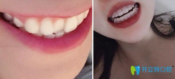 苏州康洁口腔陶瓷托槽矫正牙齿案例图