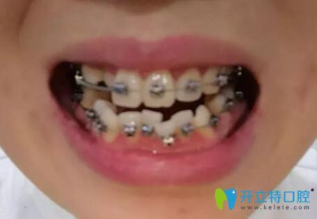 郑州牙齿正畸哪个医院好?在天后口腔矫正1年改变了牙齿拥挤
