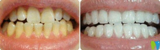 格伦菲尔牙齿发黄美白案例图