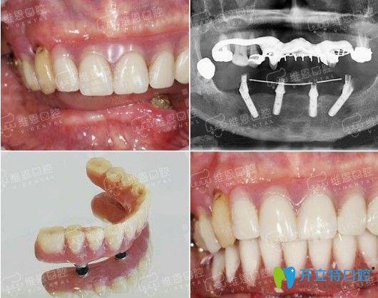 维恩口腔全口种牙案例图