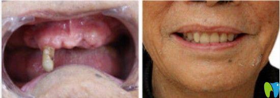 格伦菲尔下颌无牙种植案例图