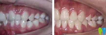 诺德齿科牙齿拥挤不齐矫正案例图