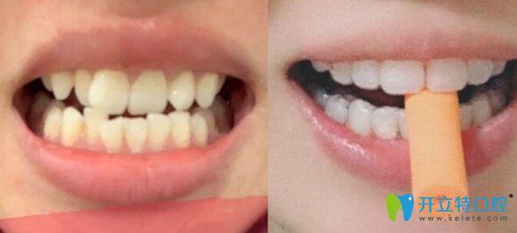 苏州康洁口腔隐形牙套牙齿矫正前后效果对比图