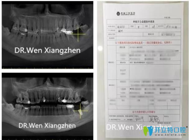 鼎植口腔种植牙案例前后对比图