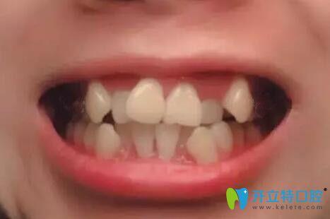 矫正牙齿不齐,在广州柏德口腔戴半隐形陶瓷托槽1年就整齐啦