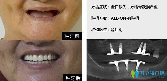 广州柏德口腔牙医薛启明全口种植牙案例