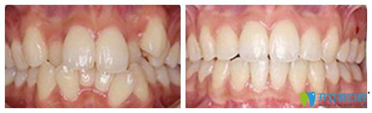 唯美凸嘴牙齿不齐矫正案例图