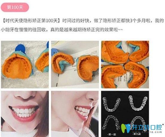 唯美口腔顾客戴时代天使隐形牙套100天图示
