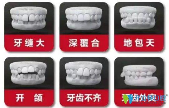 哪些牙齿需要做牙齿矫正图示