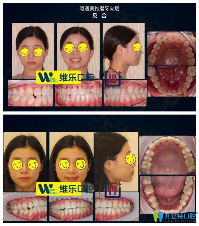 维尔口腔反颌导致牙缝增大案例图