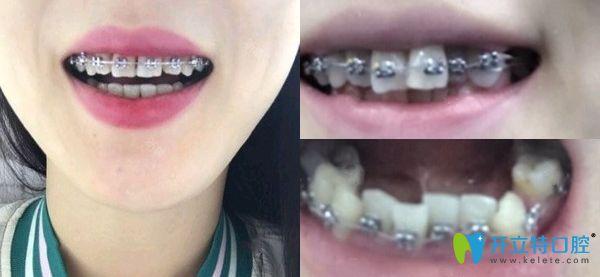 郑州卓 越口腔金属托槽牙齿矫正效果图