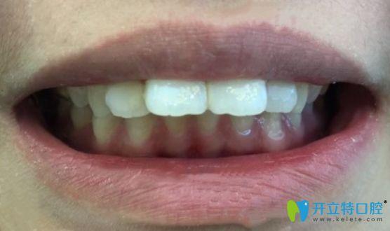 选择新乡拜博口腔做龅牙齿矫正,因为价格优惠而且口碑好!
