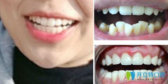 郑州卓 越口腔牙齿矫正案例效果图