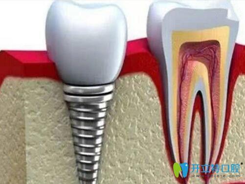 上海哪家医院种植牙好?我在亿大口腔做的即刻种植牙就很棒