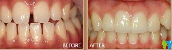 中诺口腔牙缝过大矫正案例图