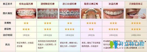 隐形牙套和钢丝牙套的优点宣传图
