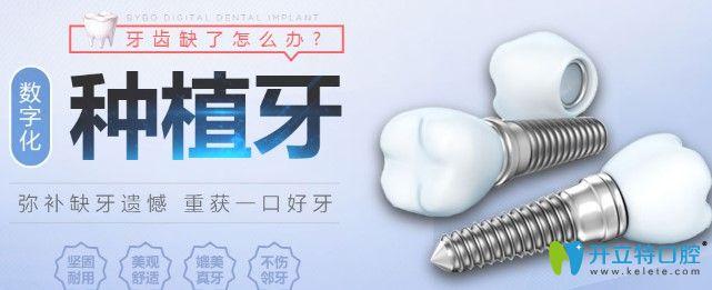 拜博口腔种植牙优势
