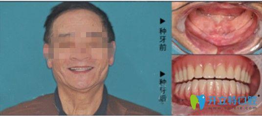 深圳拜博口腔种植牙效果展示图