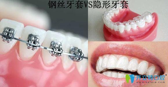 钢丝牙套和隐形牙套对比图