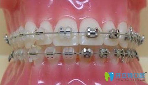 惠州中信口腔钢丝牙套展示图