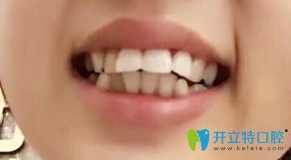 26岁在中信惠州医院口腔科开启了牙齿矫正之旅,现下牙套啦!