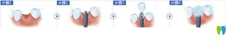 种植牙过程图示