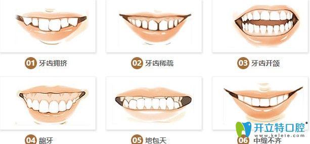 牙齿各类情况图示