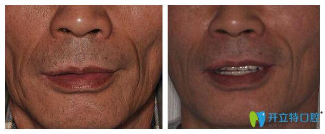 昆明雅度口腔全口种植牙案例