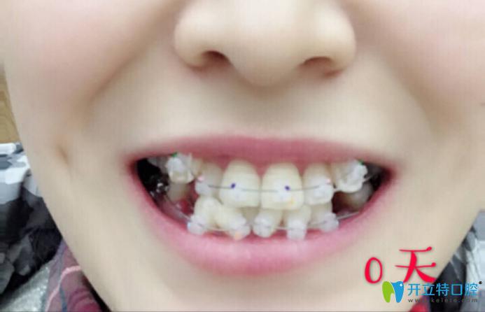 西安中诺口腔靠谱吗?我做半隐形陶瓷牙齿矫正后来评价啦