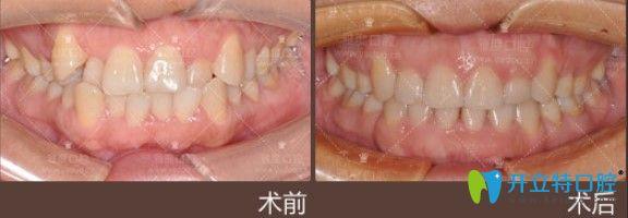 雅度口腔虎牙矫正案例图